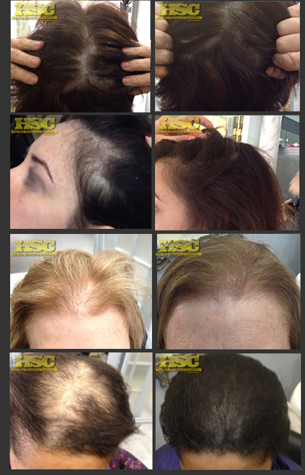Women Balding hair restoration atlanta ga
