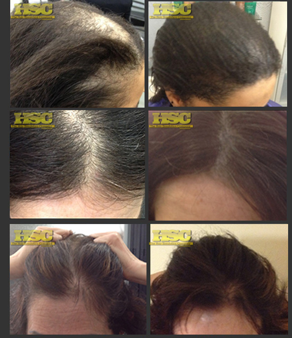 Women Balding Treatment hair loss solution tattooed hair